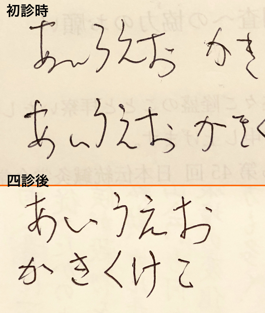 書痙の鍼灸治療2   関 墨荘堂 鍼...
